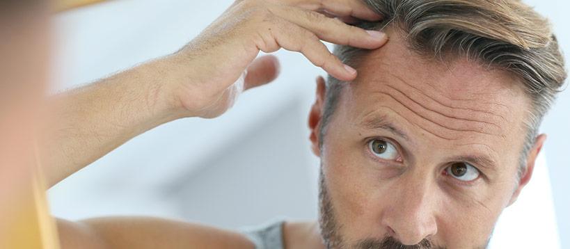 Vad händer efter en hårtransplantation